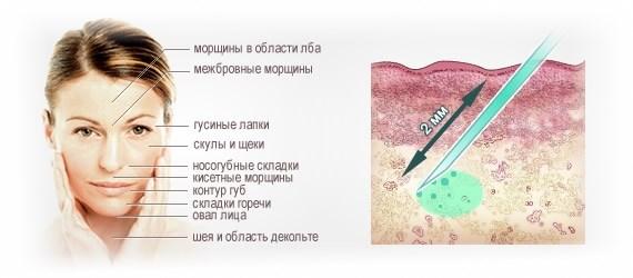 Курс биоревитализации для лица - методики, этапы, особенности процедуры