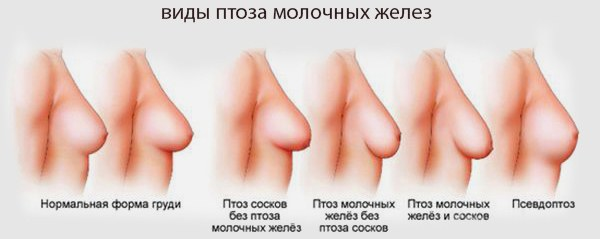 Операция по уменьшению грудных желез. Фото, видео, цены, отзывы