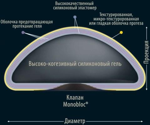 Увеличение груди каплевидными имплантатами в маммопластике. Фото до и после