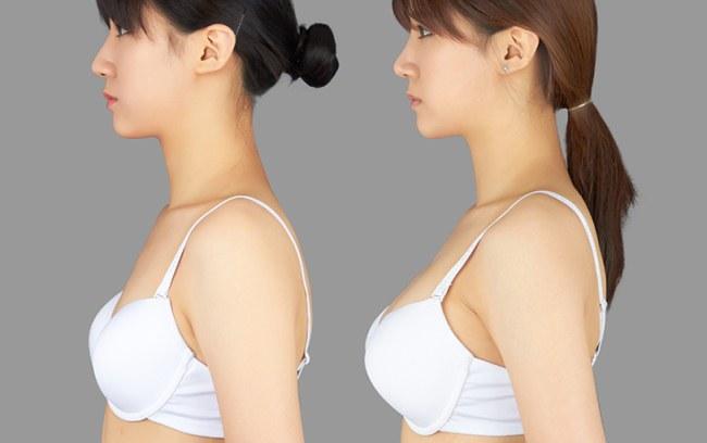 Маммопластика — что это за операция, фото до и после с описанием, отзывы