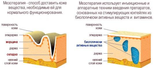 Мезотерапия лица — что это такое. Фото до и после, отзывы, с какого возраста