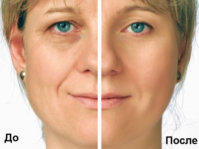 Rf лифтинг лица - что это такое, фото до и после, последствия, отзывы врачей