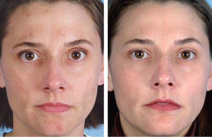 Алмазный пилинг для кожи лица. Что это такое, показания, аппарат, цена процедуры, фото