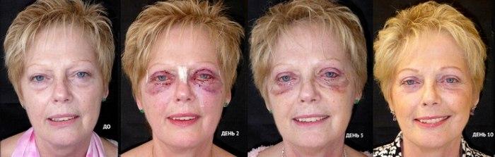 Биоревитализация–процедура омоложения лица. Препараты, цена, отзывы, фото до и после