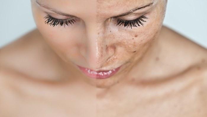 Что такое химический пилинг лица