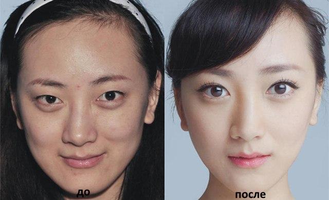 Кантопластика - что это такое, фото до и после, цена. Наружная, медиальная операция