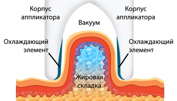 Криолиполиз (криолипосакция). Что это такое, цена, отзывы
