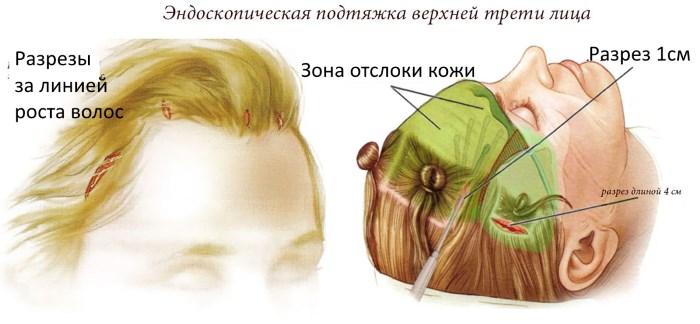 Лифтинг лица - что это за процедура. RF-лифтинг, нити для лица, безоперационная подтяжка