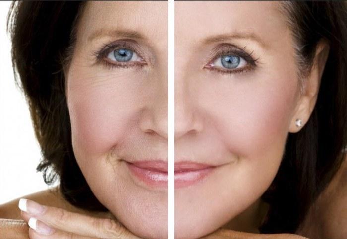 Мезонити — лифтинг подтяжка лица в косметологии. Фото, отзывы, цена