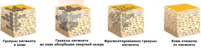 Микроблейдинг бровей - что это, как делается, отзывы, фото до и после