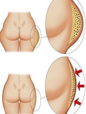Обертывание медом для похудения от целлюлита дома. Рецепты, отзывы