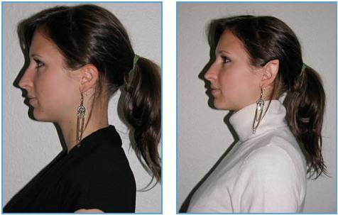 Отопластика - эльфийские уши