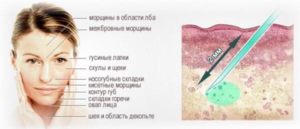 Процедуры для лечения сухой кожи на руках, ногах, голове, теле, дома и в салоне