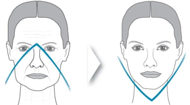 Скулы гиалуроновой кислотой. Фото до и после, стоимость процедуры, отзывы