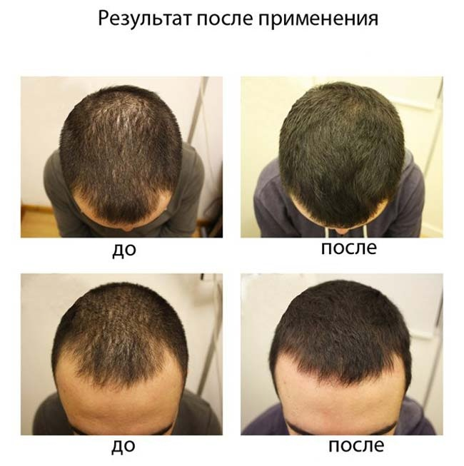 Лучшие аптечные средства от выпадения волос