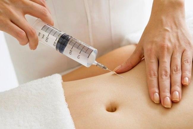 Уколы для похудения в живот. Инъекции озона, липолитики, Акваликс, отзывы, цены