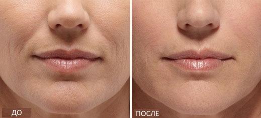 Радиесс (Radiesse) - препарат-филлер для векторного лифтинга в косметологии