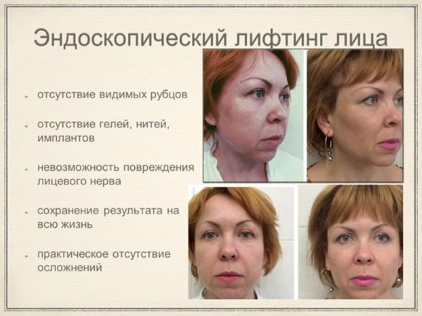 Безоперационная подтяжка век. Упражнения, кремы, подтяжка по Жданову, лифтинг кожи, маска в домашних условиях. Отзывы
