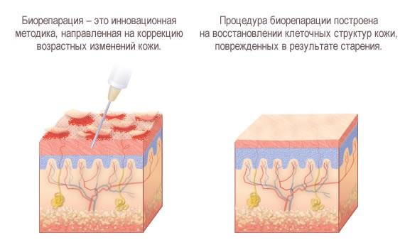 Биорепарация - что это такое, действие процедуры, эффект, препараты, которые применяются: Гиалрипайер, Аквашайн, фото, цена, отзывы