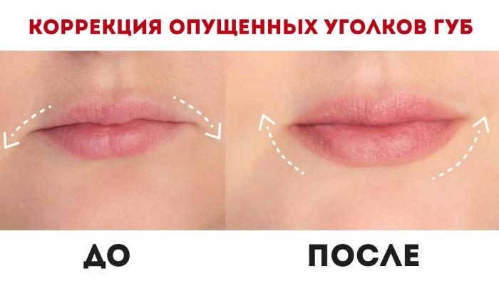 Ботокс в губы, уголки губ, для увеличения и контура. Фото и последствия, отзывы