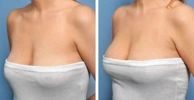 Что такое мастопексия
