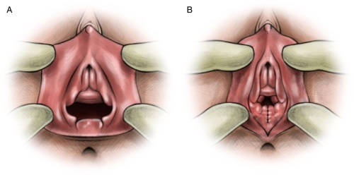 Гименопластика – что это такое, фото до и после, этапы операции, реабилитация, результаты проведения