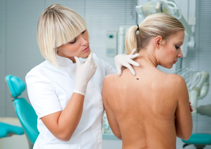 Как избавиться от папилломы, удаление лазером на шее, теле, лице, в интимных местах. Лечение в домашних условиях