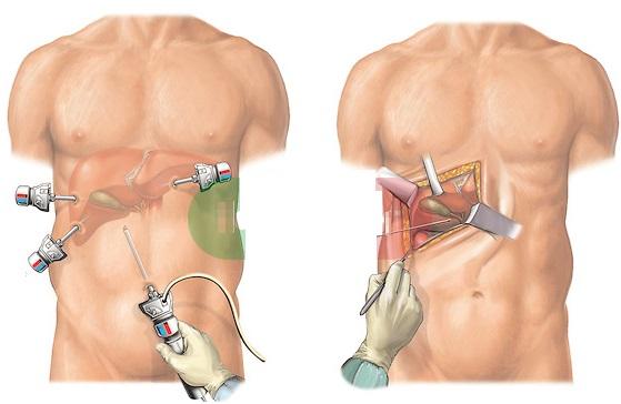 Как удаляют ребра, зачем. Операция по удалению нижних ребер, тонкая талия женщин, мужчин, цена, фото