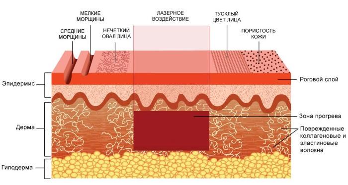 Лазерная шлифовка кожи лица от рубцов и шрамов. Фото до и после, цена, отзывы. Домашний уход за кожей после процедуры
