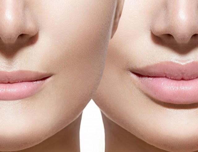 Увеличение губ гиалуроновой кислотой. Фото до и после процедуры, отзывы. Сколько стоят инъекции
