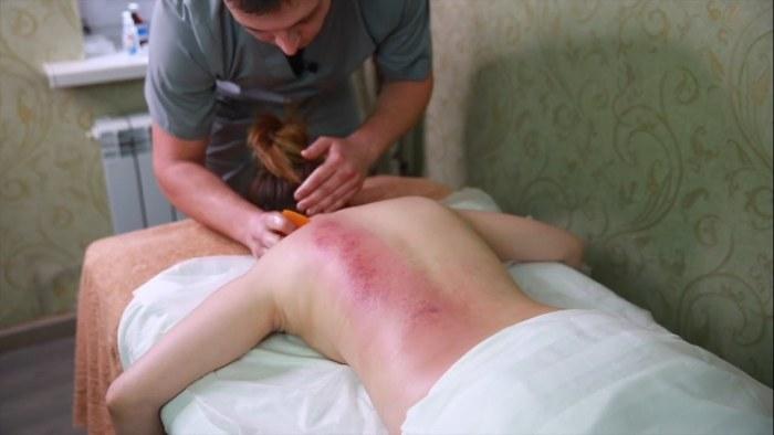 Массаж гуаша - что это такое, техника выполнения, как делается для лица, спины, фото до и после