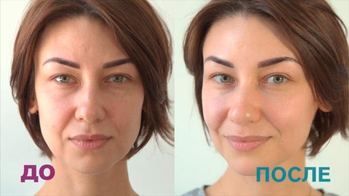 Микротоки для лица в косметологии - процедура аппаратной терапии. Цена, отзывы