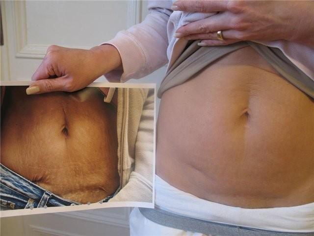 Растяжки у беременных, подростков на теле, животе, груди, ногах, попе, спине. Причины, как убрать