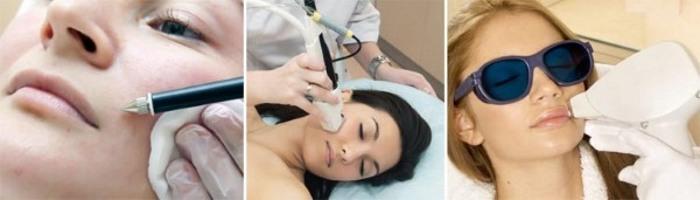 Удаление волос на лице у женщин