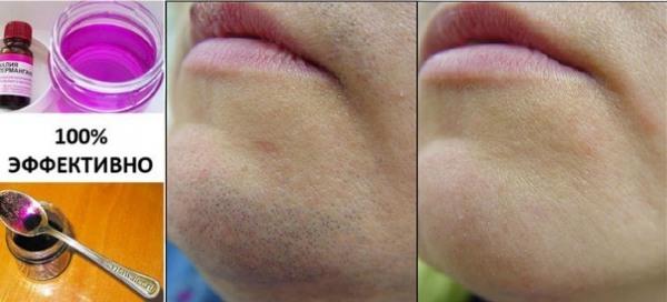 Как избавиться от волос на лице у женщин - средства и процедуры, удалить нитью, кремом, лазером