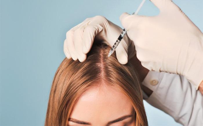 Витамины для волос от выпадения и для роста. Эффективные, хорошие, недорогие комплексы для женщин и мужчин. Отзывы