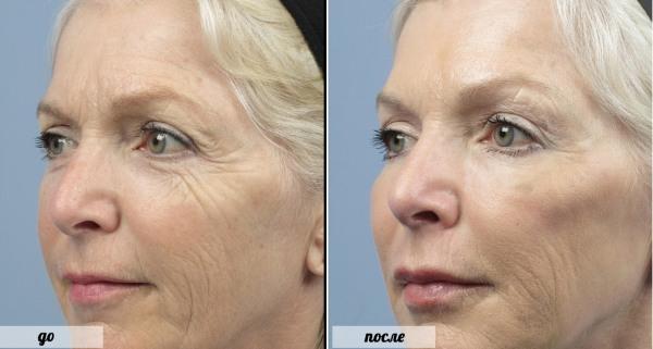 Что такое ботокс для лица, инъекции, уколы нано ботокса в лоб, носогубные складки, подмышки