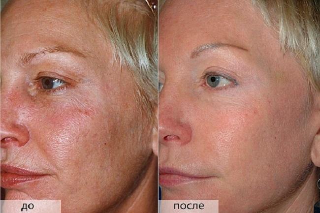 Миндальный пилинг для лица - что это такое, как делается, фото до и после, отзывы