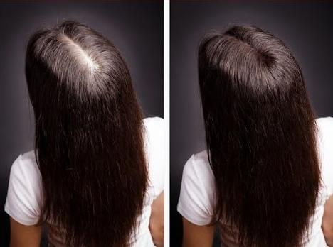Эвкапил ампулы для волос