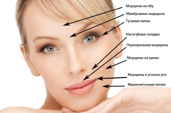 Гиалуроновая кислота для лица: как проводят уколы, результаты, фото до и после инъекций, отзывы