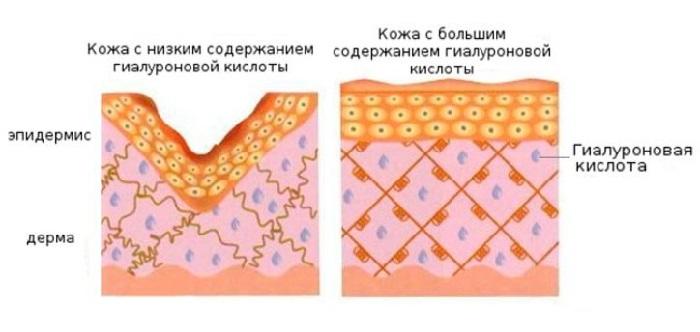 Гиалуроновая кислота в губы - фото до и после, сколько держится эффект, противопоказания
