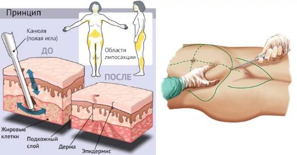 Как избавиться от висцерального жира на животе мужчине и женщине. Упражнения и другие способы