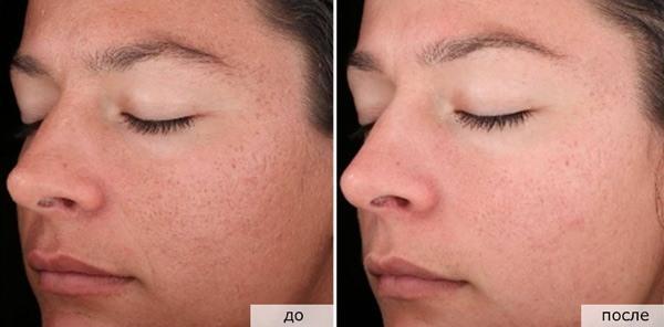 Пилинг лица в домашних условиях от морщин, омоложения кожи. Рецепты, инструкция по применению, фото