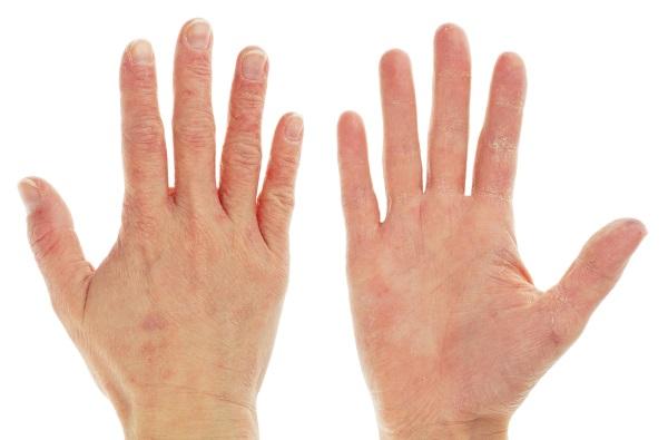 Трещины на пальцах рук - причины, фото. Лечение в домашних условиях народными средствами, лечебными мазями