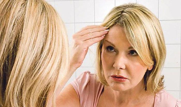 Выпадение волос у женщин – как остановить, что делать: шампуни, масла, маски, витаминные комплексы