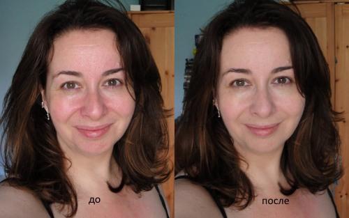 Активированный уголь для лица. Рецепты масок от черных точек и прыщей, с желатином, аспирином. Пропорции, как применять, фото и отзывы