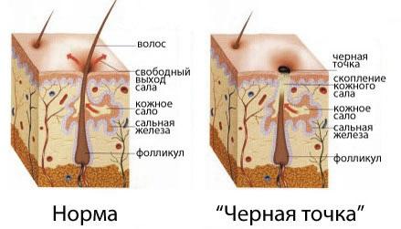Как быстро избавиться от черных точек на лице: на носу, лбу, подбородке. Народные средства, аптечные, косметика и салонные процедуры