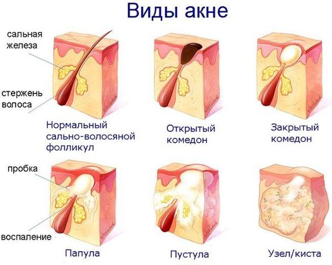 Лактофильтрум от прыщей: отзывы врачей дерматологов с фото до и после. Инструкция по применению, аналоги, цена