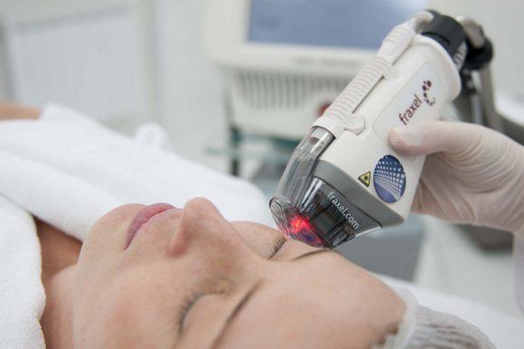 Лазерное омоложение лица - что это такое, плюсы и минусы процедуры, противопоказания, фото и отзывы