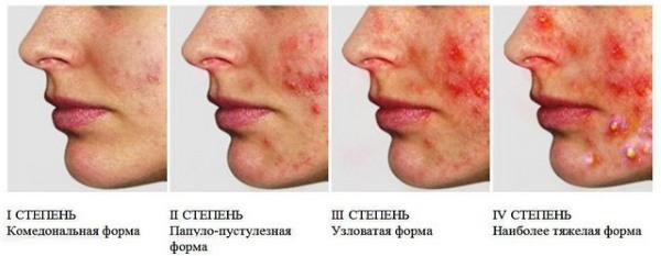 Подкожные прыщи на лице. Причины, как избавиться. Быстрое лечение народными средствами, мазями, медикаментами в домашних условиях